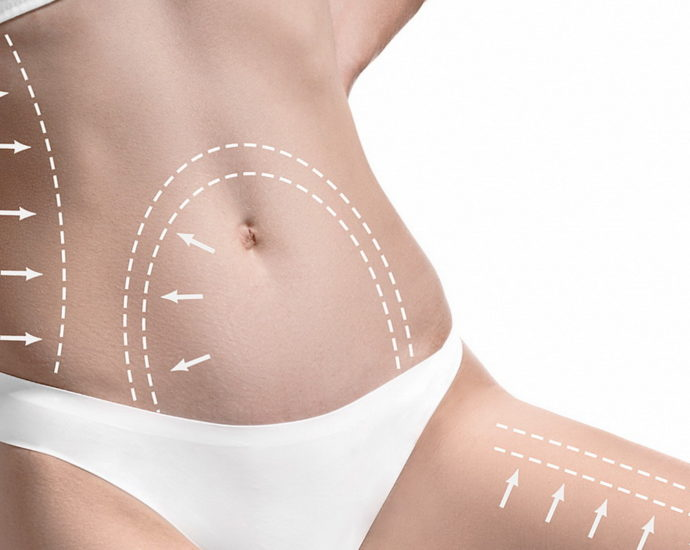 What Makes The Liposuction Surgery Useful For The Patients?